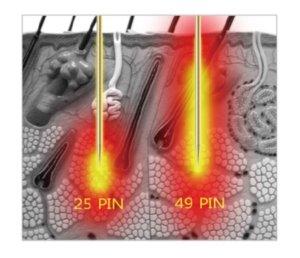 frakčná rádiofrekvencia, izolované mikroihly, neizolované mikroihly
